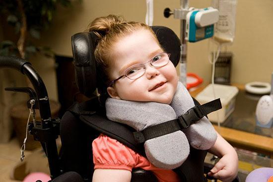 فلج مغزی در بچه ها؛ علائم و راه های درمانش