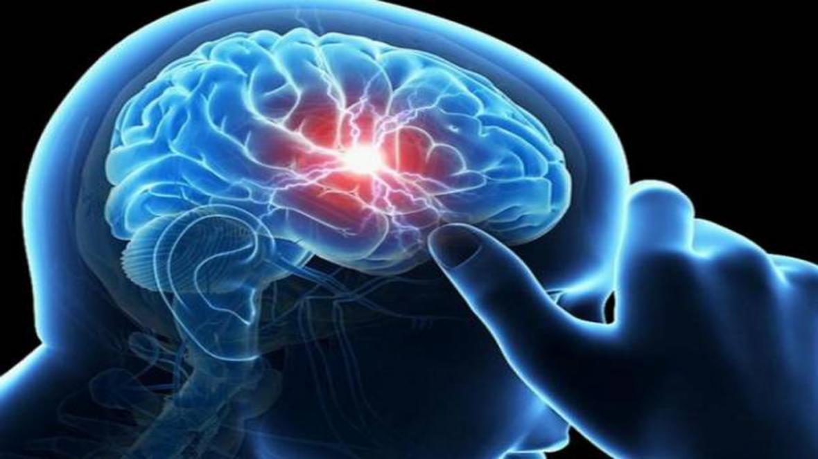 نشانه های خونریزی مغزی چیست؟