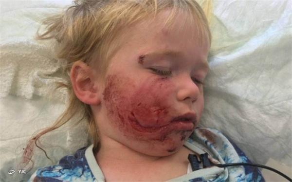 کودک 3 ساله قربانی حمله سگی وحشی شد